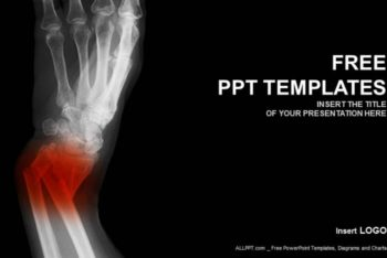 Free Broken Forearm X-Ray Powerpoint Template