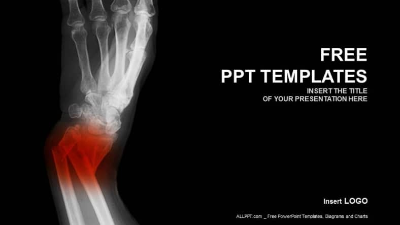 Broken Forearm X-Ray