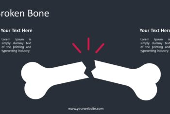 Free Fractured Bone Slides Powerpoint Template